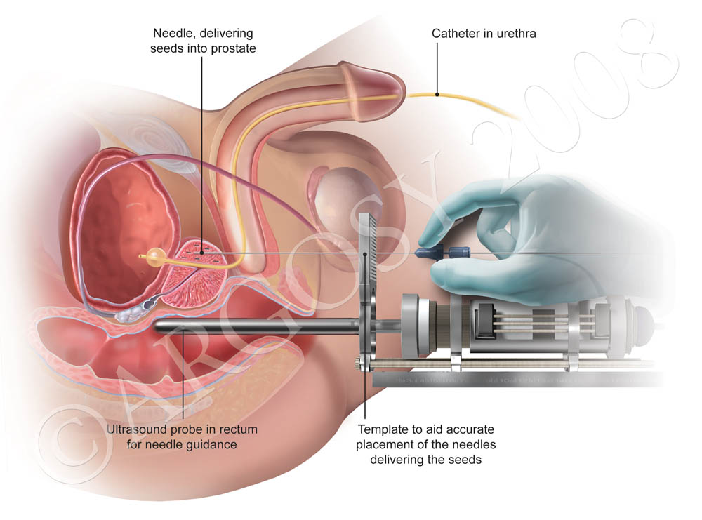 Cialis And Prostate Ablation